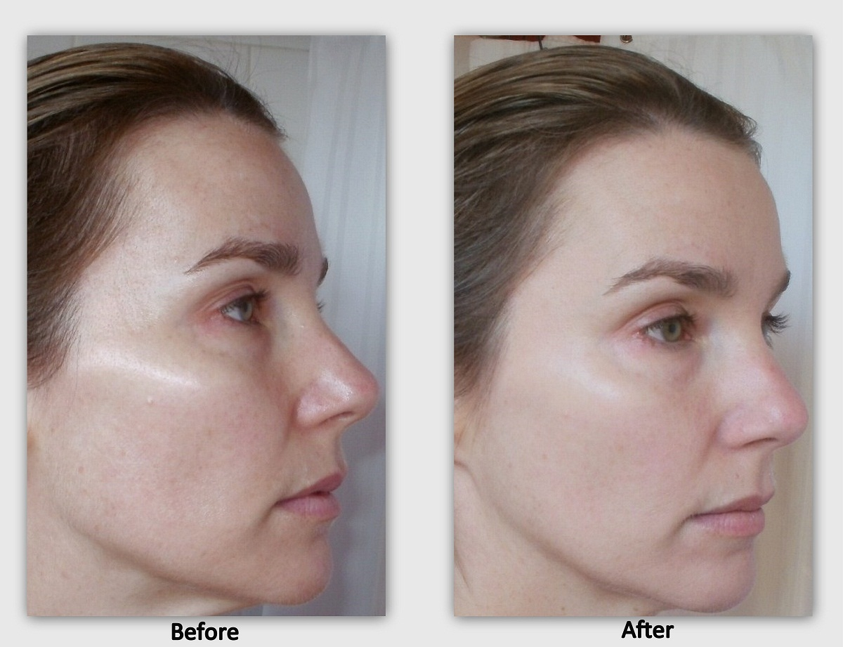 Wendy wearing Almay TLC Foundation, before and after