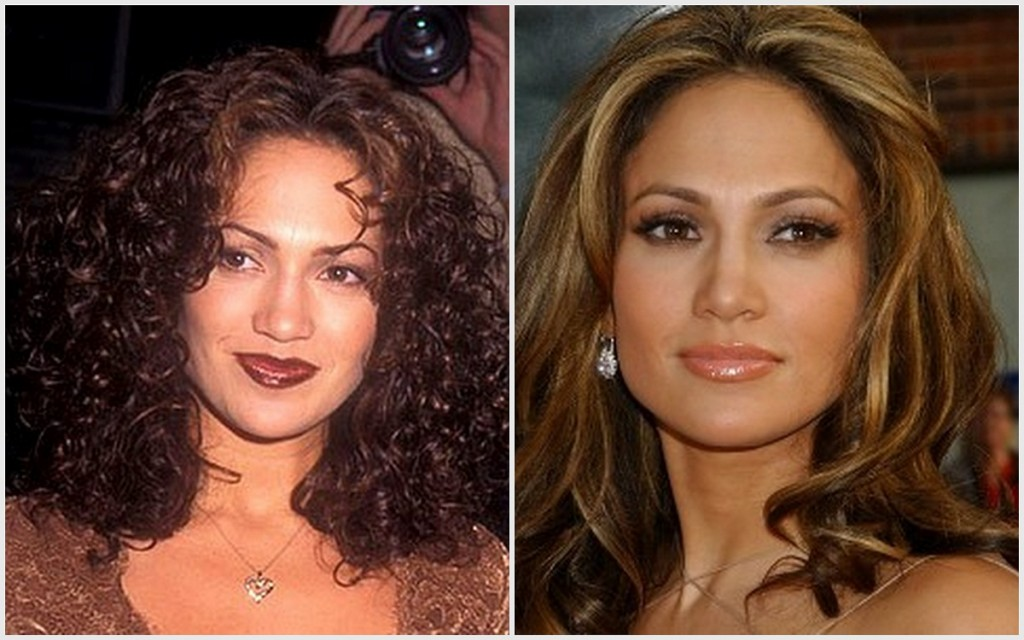 Jennifer Lopez's lips too dark/brown in her early years of fame (right); recent healthy lip color (left). Bonus: check out her eyebrows.