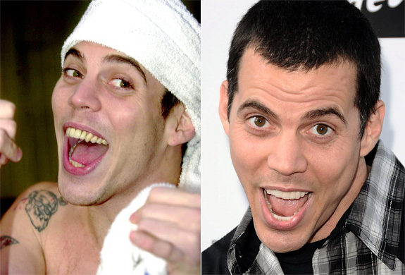 Never thought I'd use Steve-O as an example for anything positive, but note the subtle difference before (left) and after (right) bleaching his teeth.