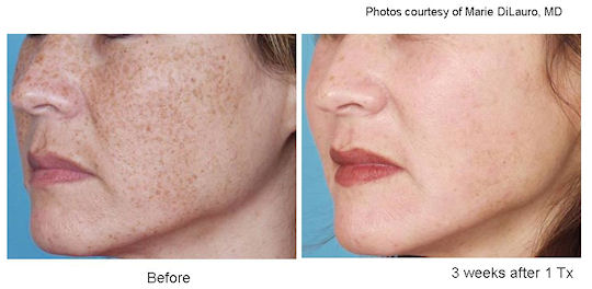 IPL before and after - brown spots (Photo: Bryer Medspa in PA)
