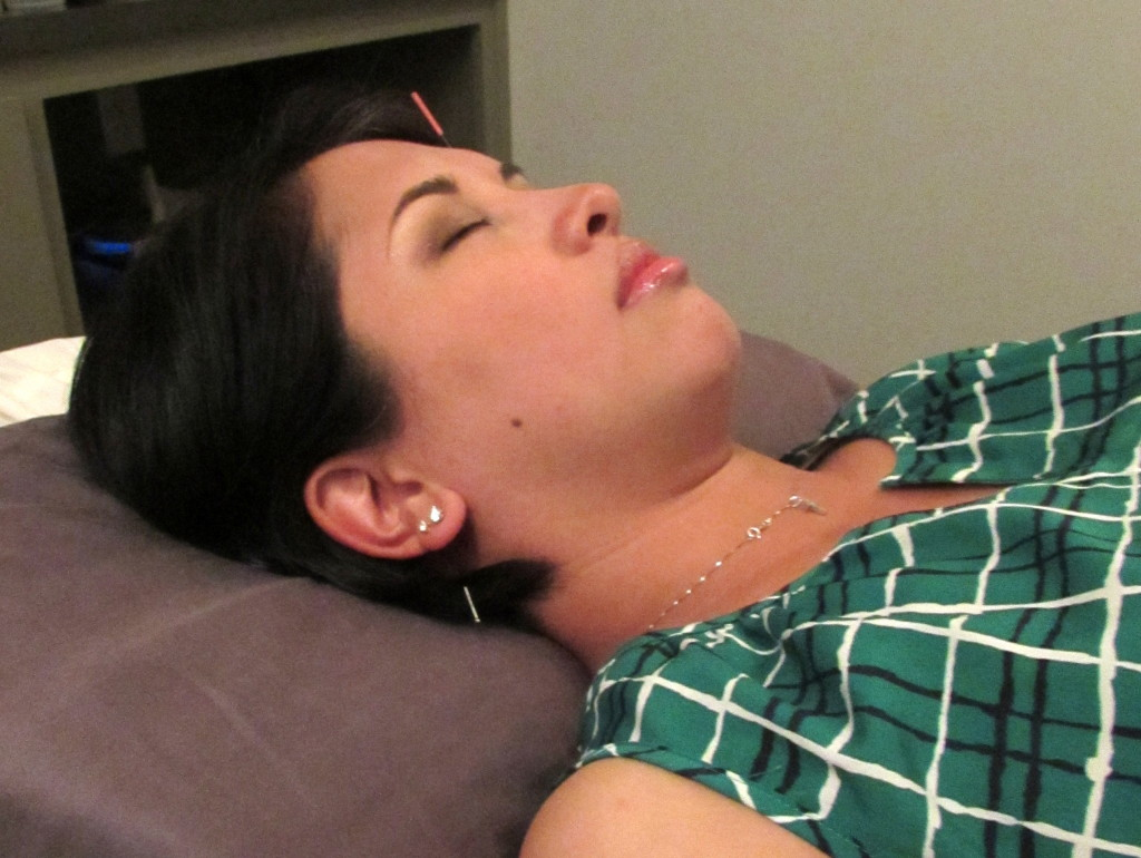 Jenn getting acupuncture at Hiatus Spa + Retreat Austin